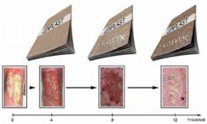 Postęp w leczeniu rany z wykorzystaniem opatrunku LENPLAST (Fot. Fundacja Linum)